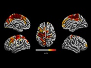 Air Pollution Exposure in 1-year-olds Linked to Structural Brain Changes at 12