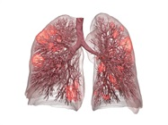 Computer Lung Model Enables Protective Ventilation