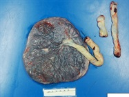 Placentas from COVID-19-Positive Pregnant Women Show Injury