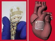 Implantable Device Can Monitor, Treat Heart Disease